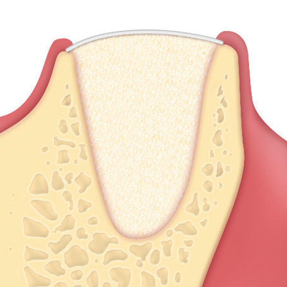 Alveolární regenerace