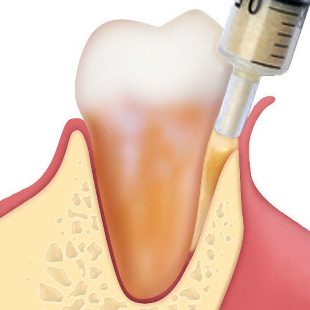Periodontální regenerace (Gel 40)