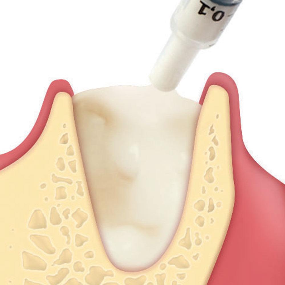 Alveolární regenerace (Putty)