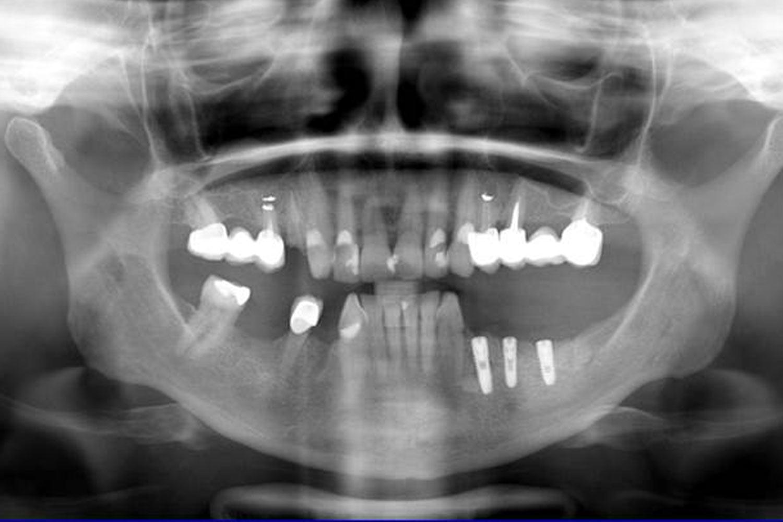 Reference OsteoBiol Lamina (Hrkal)